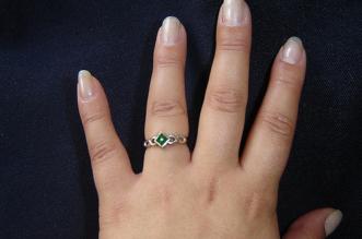 A hand with Arthritis