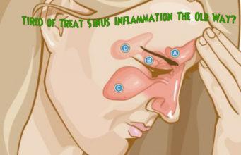 sinus inflammation