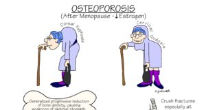 The Natural Treatment for Osteoporosis