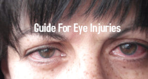 Guide For Eye Injuries