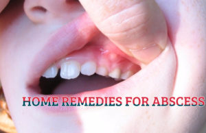 HOME REMEDIES FOR ABSCESS