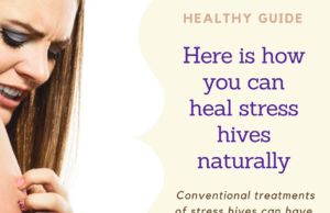 stress hives