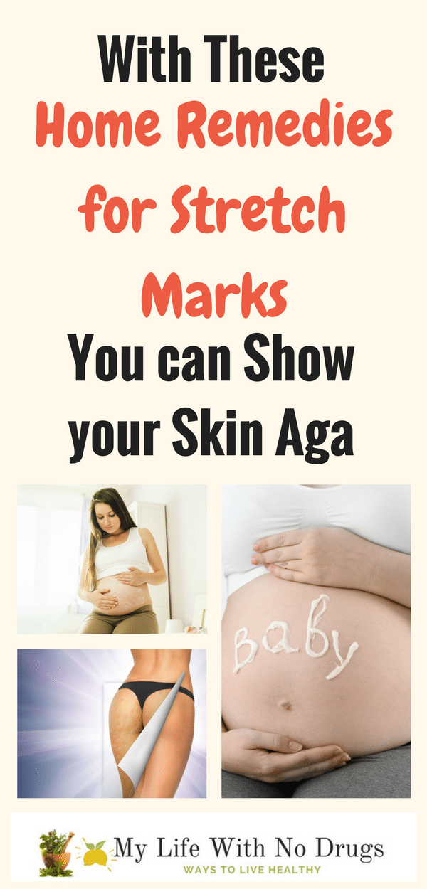 Get rid of Stretch Marks with home remedies for stretch marks it works, #ItWorks #StretchMarks #HomeRemedies #HomeRemedy #works #remedies #stretch #marks #remedy #stretches