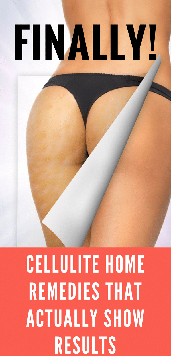 Cellulite Home Remedies that Actually Show Results, How to get rid of Cellulite with Cellulite Home Remedies #HomeRemedies #home #homes #cellulite #remedies #remedy #AntiCellulite