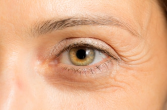 11 Ultimate Ways to Cure Puffiness of Eyes, How to get rid of eye puffiness, #GetRid #eye #Eyes #Cure #Ultimate #Cures #eyepuffiness,