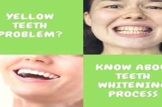 Yellow Teeth? 3 Important Aspects Know About Teeth Whitening | Teeth Whitening process | teeth yellowing #TeethWhitening #Yellow #Aspects #Yellows