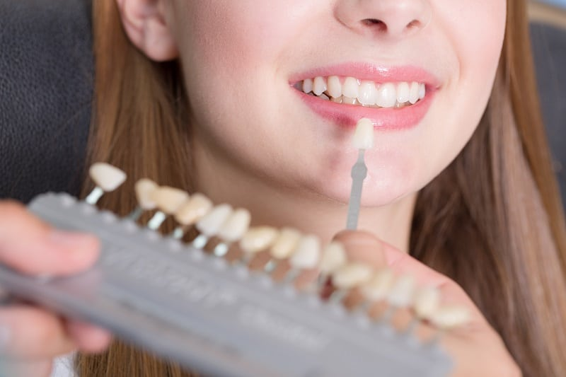 Yellow Teeth? 3 Important Aspects Know About Teeth Whitening ,teeth yellowing #TeethWhitening #Yellow #Aspects #Yellows