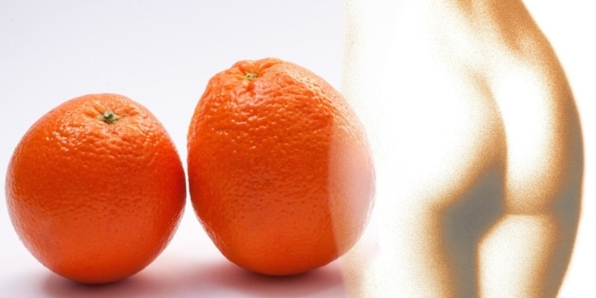 Orange Peel Cellulite
