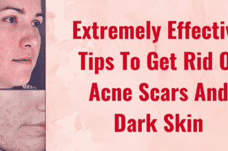 Extremely Effective Tips To Get Rid Of Acne Scars And Dark Skin