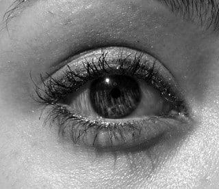 eye bags