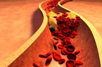 high cholesterol