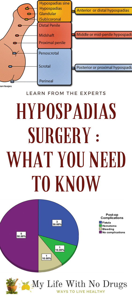 Hypospadias surgery What you need to know